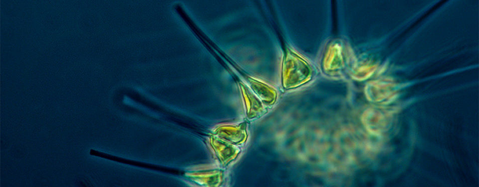 Multiple plankton cells and a band